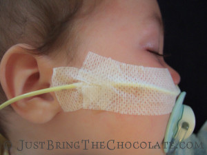 how to tape a ng feeding tube