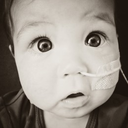 Dominic Blower feeding tube